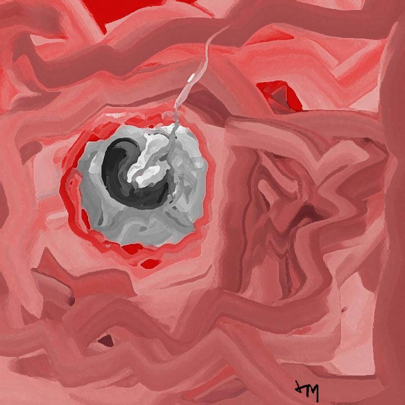 Womb1